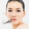 海淘有没有什么好用的祛疤产品?3大祛疤品牌推荐祛疤最有效的产品